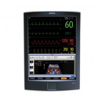 Монитор пациента V21 в Краснодаре